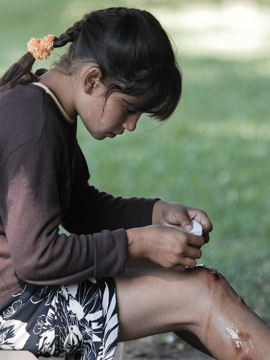 one of the beggar children applying a bandage over ursu mihail